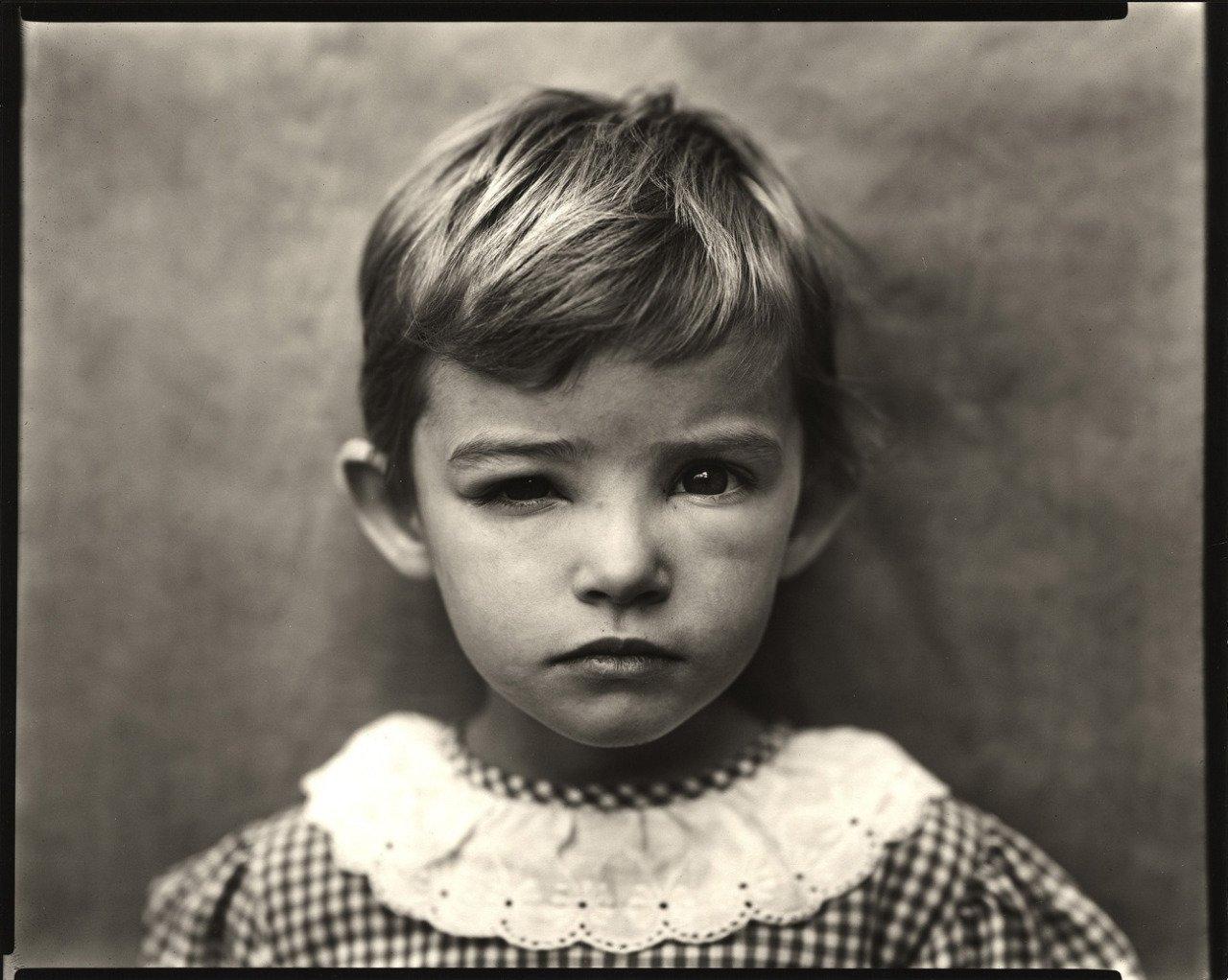 Damaged Child, 1984 © Sally Mann