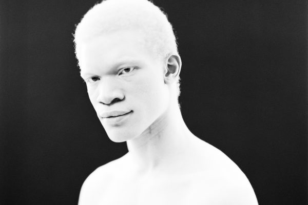 black and white portrait of an albinos man by Paul Yem